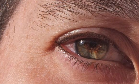 Clare's eye, 20/10/12