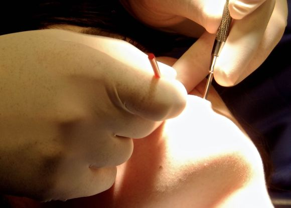 Dentist hands, 2/10/14