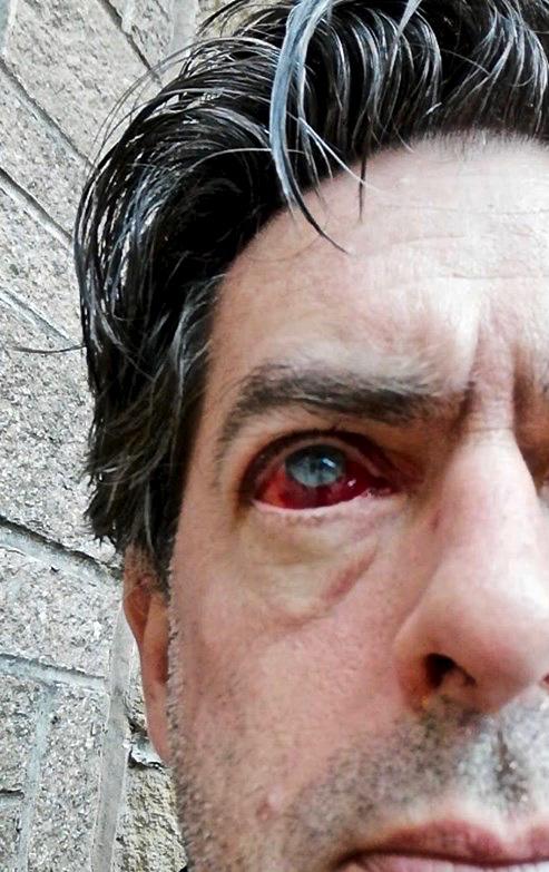 Terminator eye, 4/5/19